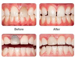 Cosmetic Dentist - Dr. Manjula Alapati