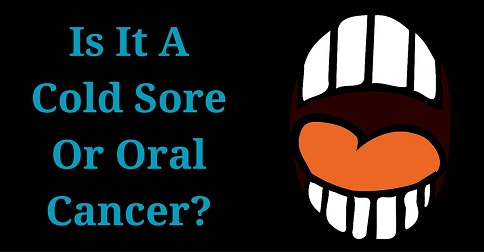 What Are The Symptoms of Oral Cancer- (2)_484x252
