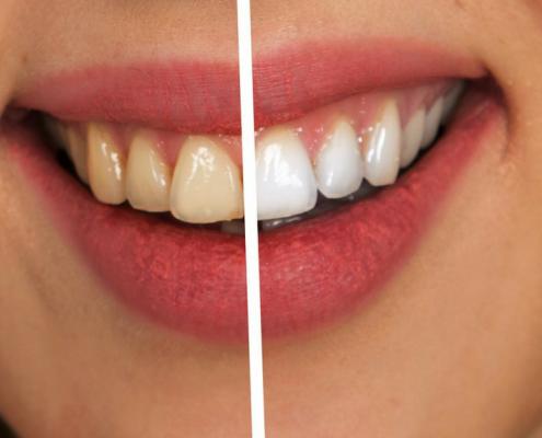 Frisco teeth whitening dentist shares bleachorexia horror story